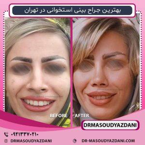 بهترین جراح بینی استخوانی در تهران