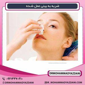 ضربه به بینی عمل شده دکتر محمد مسعود یزدانی